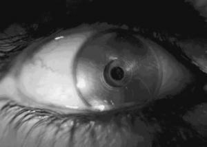عيون إلكترونية حيوية لعلاج المصابين بالعمى في بريطانيا